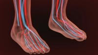 Who May Be More Prone to Peripheral Artery Disease?