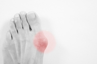Are Bunions Considered To Be A Deformity?
