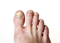 Why Is My Toenail Discolored?