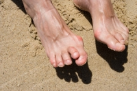 Hammertoe May Be Considered To Be A Muscle Imbalance